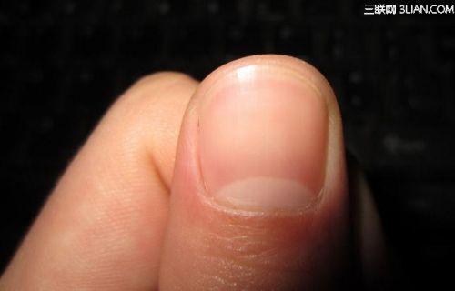 如果指甲有大片的白色和深色的边缘